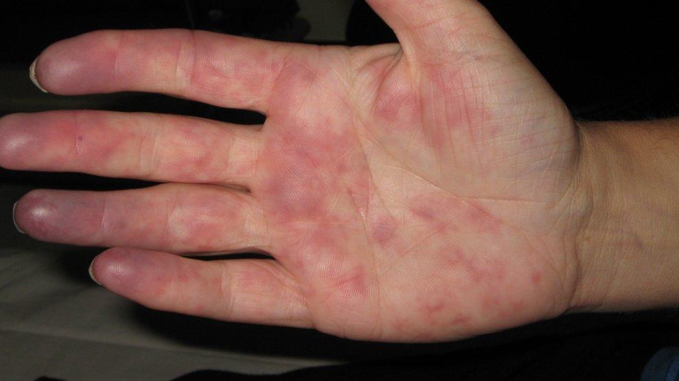 Blaue Zehen Blaue Finger Arztekammer Nordrhein